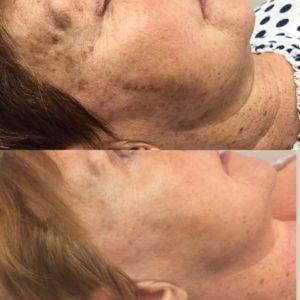 Jouw Huidtherapeut - Behandeling pigmentvlekken oude huid voor en na