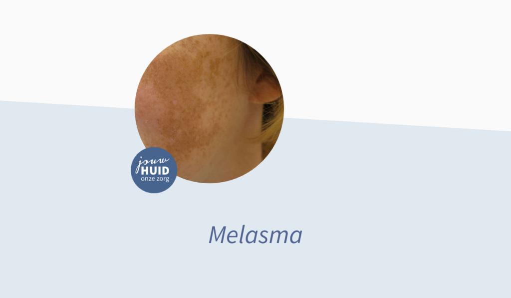 Jouw Huidtherapeut - Melasma - Donkere pigmentvlekken in het gezicht - Zwangerschapsmasker - Wat kun je ertegen doen
