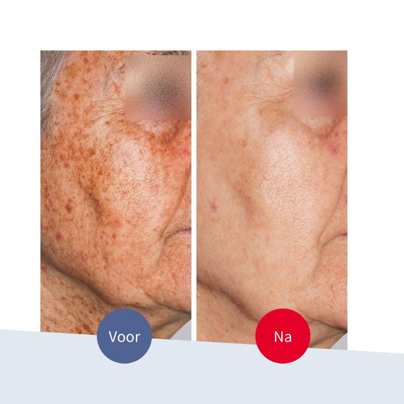 Jouw Huidtherapeut - Voor en na behandeling pigmentlaser - Ouderdomsvlekken oudere huid - Jongere huid zonder botox of fillers veilige behandeling - Houten Bunschoten Spakenburg