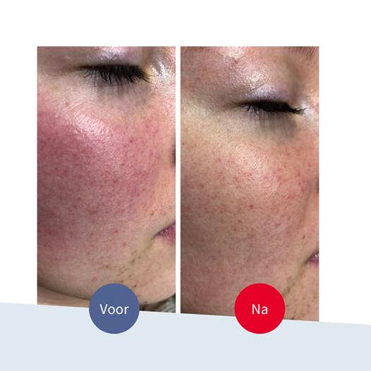 Jouw Huidtherapeut - Voor en na - rode wangen couperose behandeling laser