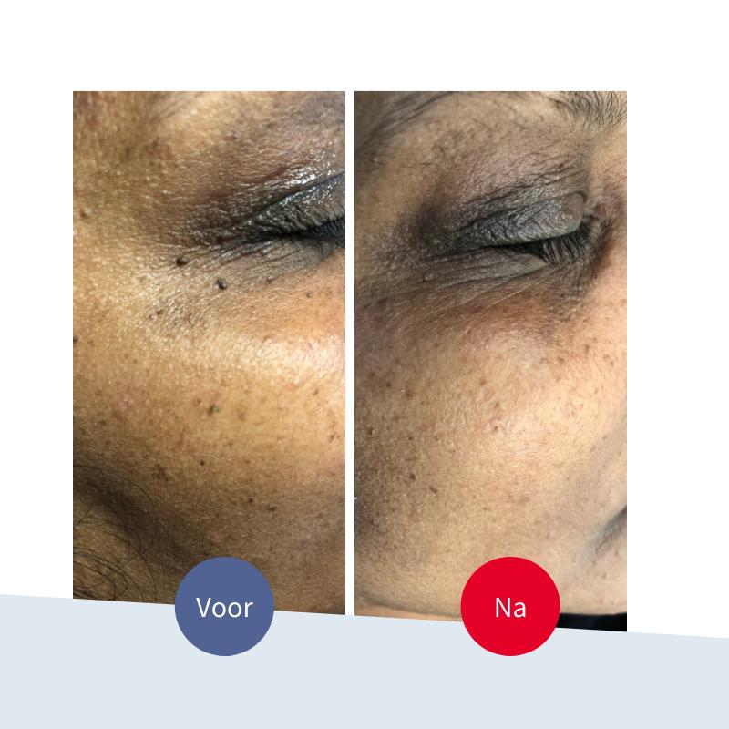 Jouw Huidtherapeut - donkere wratjes bij oog verwijderen voor na resultaat huidtherapie donkere huid veilig en effectief