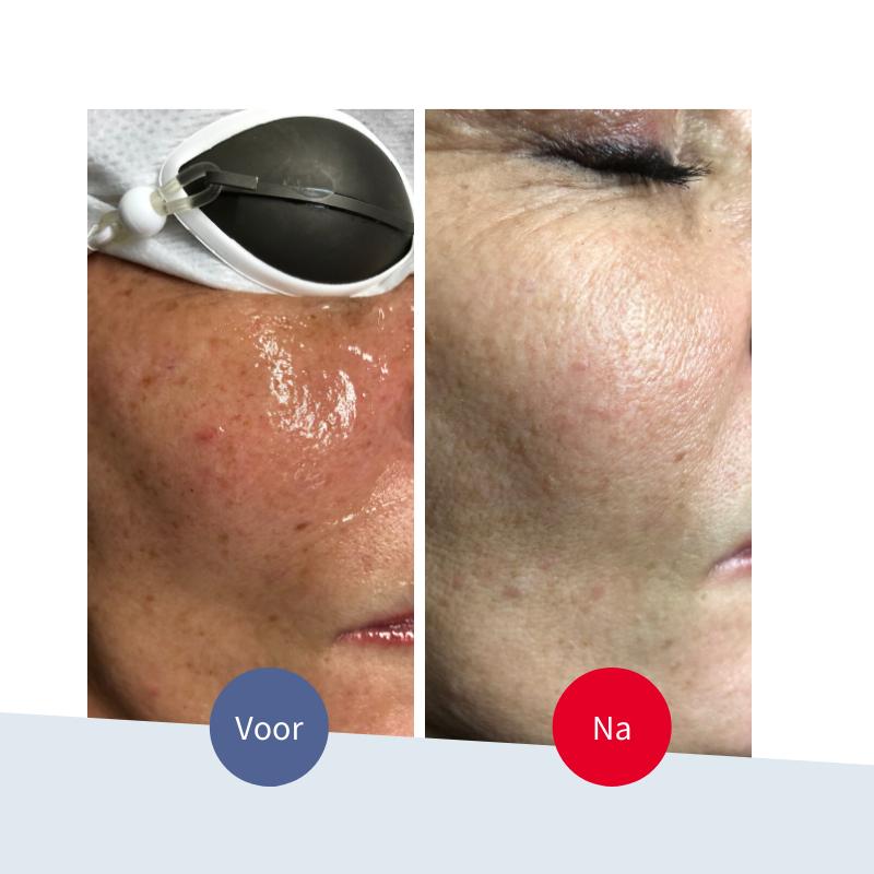 Jouw Huidtherapeut - voor na behandeling pigmentlaser - pigmentvlekken in het gezicht storend - snel effectief en zichtbaar resultaat