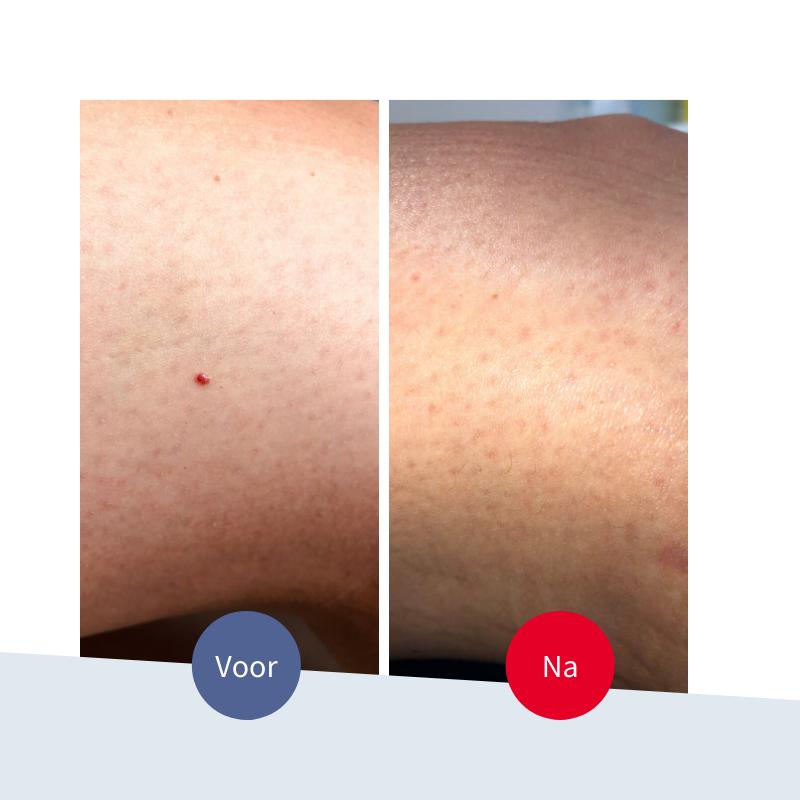Jouw Huidtherapeut - voor na kleine rode vlekjes plekjes verwijderen voor na veilig effectief resultaat kersenwratjes
